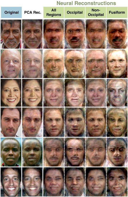 MRI faces