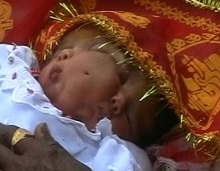 Two-faced baby born in Northern India
