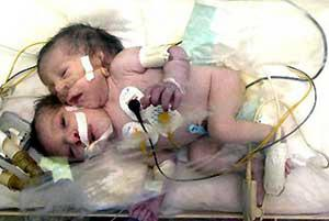 Egyptian two-headed (conjoined) baby (JPG)